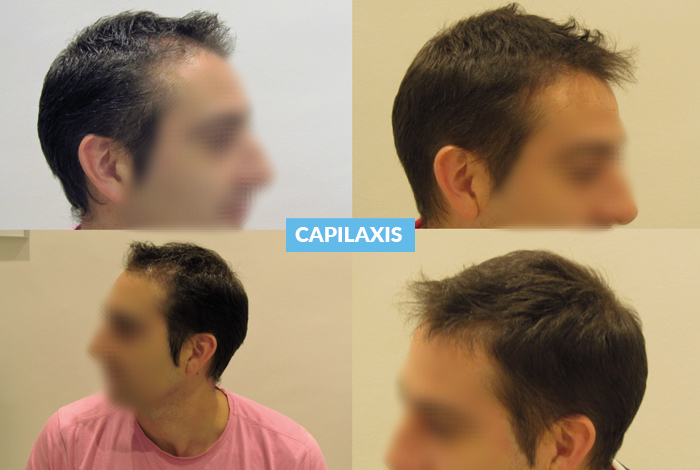 CAPILAXIS, Bioestimulación Capilar con Minoxidil