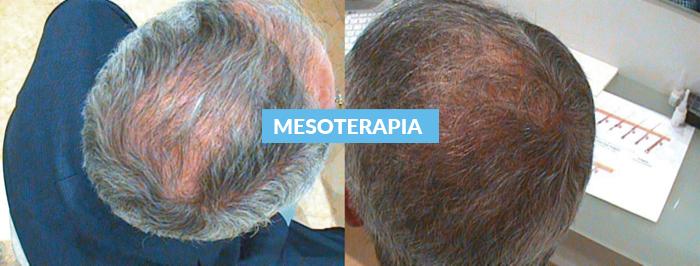 Mesoterapia Capilar Regenerativa
