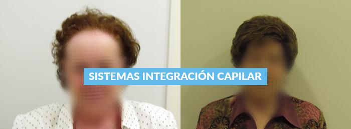 Sistemas de Integración Capilar